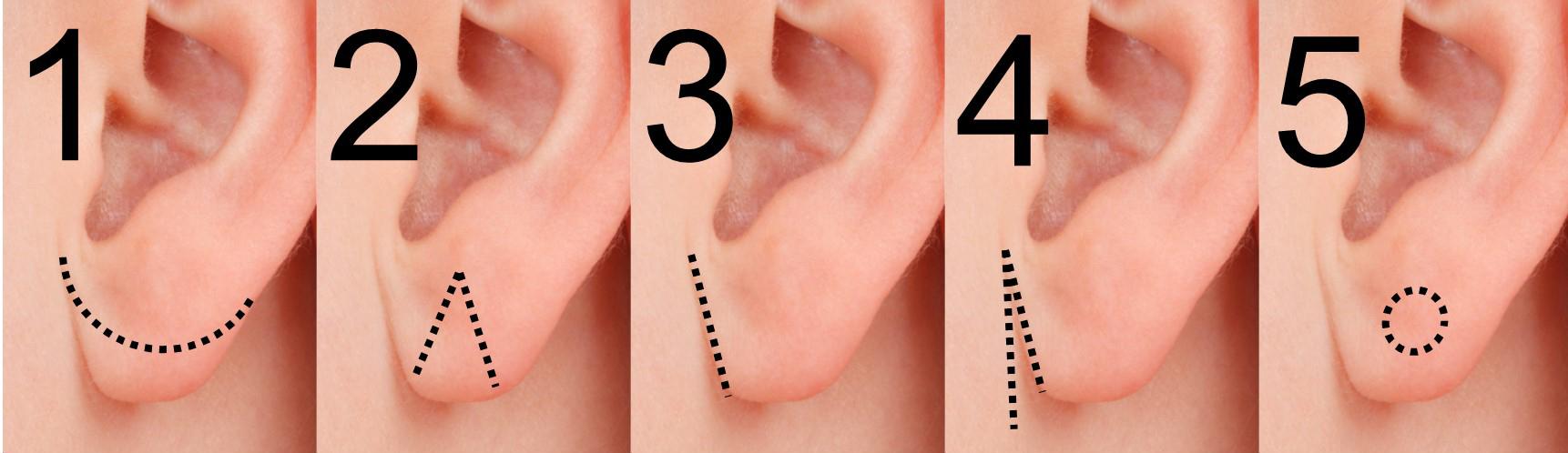 Ohren Operation